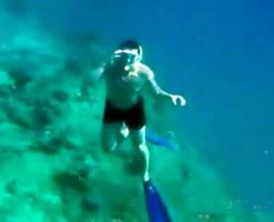 【グロ画像:鳥肌】シュノーケル中にボートのスクリューに頭を巻き込まれて・・・