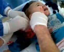 【グロ動画:シリア】右腕を打たれた赤ちゃん・・・骨まで抉れて無くなってる・・・