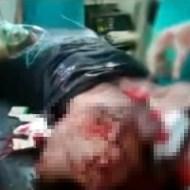 【閲覧注意:事故】足とペニスを失った男性・・・そこらじゅう血だらけ