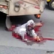 【グロ動画】轢かれてグチャグチャ・・・それでも生きてしまった男性