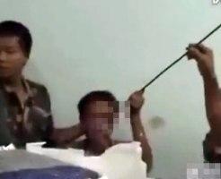 【グロ動画】2mの鋼棒が目に突き刺さった男性・・・