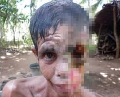 【グロ画像】感染症で顔半分が骨になった女性【閲覧注意】