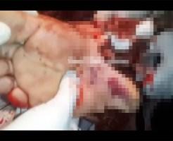 【グロ動画】抉れた足の応急処置映像がスプラッターすぎる・・・