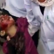 【グロ死体】シリアの難民キャンプ襲撃で亡くなった美少女・・・