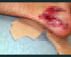 【グロ注意】事故で足首抉れて中身が色々見えてるんだが・・・