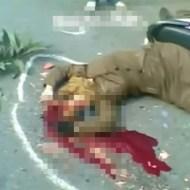 【閲覧注意】事故で顔だけがグチャグチャになった女性が息してない!!