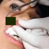【超閲覧注意】16歳女性の唇から巨大な蛆虫を取り出す