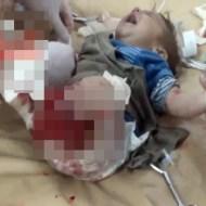 【グロ注意】紛争の被害者・・・赤ちゃんまでも足が千切れて・・・ ※閲覧注意