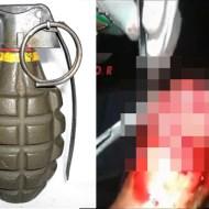 【グロ動画】手榴弾被弾したらこうなった・・・ ※閲覧注意
