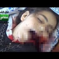 【鳥肌映像】戦地で流れ弾に当たった少女の顔・・・