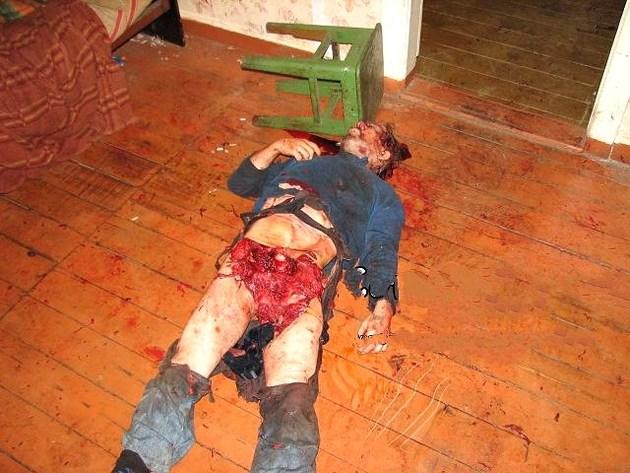 【グロ画像】ある日 森のなか くまさんに・・・喰い殺された ※閲覧注意