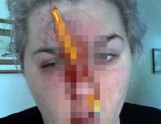 【グロ注意】鼻の穴に鉛筆を突き刺して遊んでた女性がヤリ過ぎた・・・