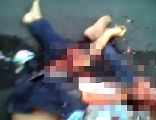 【閲覧注意】トラックに轢かれた男性・・・頭部は潰され臓器は飛び出し・・・