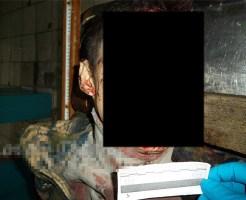 【グロ死体】顔ぐちゃぐちゃ死体の死因:花火処分中のタバコ喫煙・・・ ※グロ画像