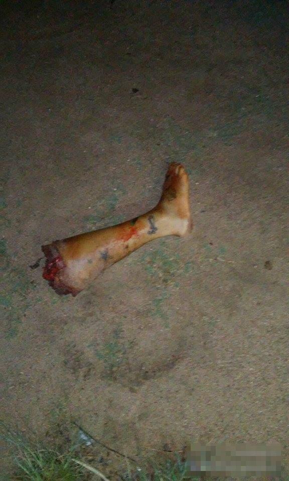【バラバラ女】裸女のバラバラ死体が道路に落ちてたらとりあえずフリーズすると思う・・・ ※グ●画像
