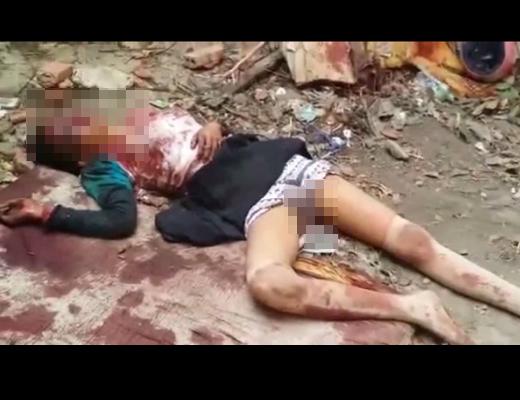 【レ●プ殺人】12歳少女がレ●プ後顔をボコボコに殴り殺された後がこれ・・・