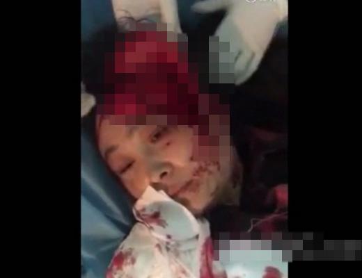 【閲覧注意】股間じゃなくて頭ビラビラになった女の子がこの娘・・・ ※グロ動画