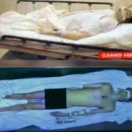 【グロ画像】マイケル・ジャクソンとか有名人の死体画像貼っていくけど見る?