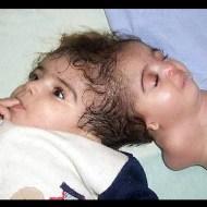 【グロ画像】産まれてくるはずだったもう一人の子供が頭にくっついて生まれてきたら・・・ ※閲覧注意