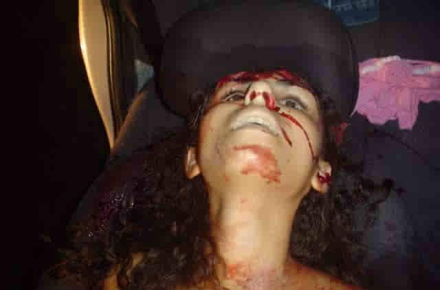 【エログロ】売春中の口リ少女がヘッドショットされて死亡する事案発生 ※グロ画像