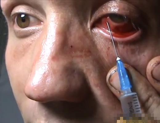 【グロ動画】俺は訓練してるから拷問は平気 → キルアかよwww目に注射するとか見てて痛々しい・・・ ※閲覧注意