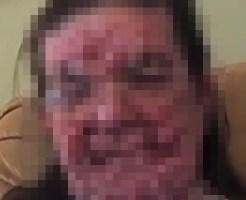 【グロ動画】難病指定されているレックリングハウゼン病にかかった女性の顔・・・