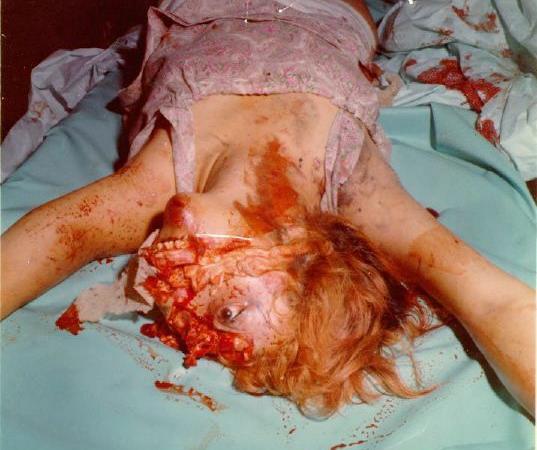 【グロ画像】ピットブル VS 女の子 顔喰いちぎられて終わる・・・ ※閲覧注意