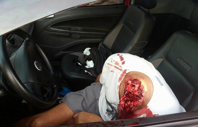 【グロ画像】車内に首なしの体、100メートル離れた所に首とロープ→首にロープ巻いて全力でアクセル踏んだ模様・・・