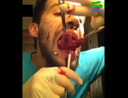 【グロ動画】蛇になりたかったマジキチ男、自分でベロを真っ二つにする改造手術やった結果ww