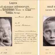 【グロ画像】1800年台のヨーロッパで流行した奇形病患者の写真貼ってく。これは隔離待ったなしですわ 閲覧注意