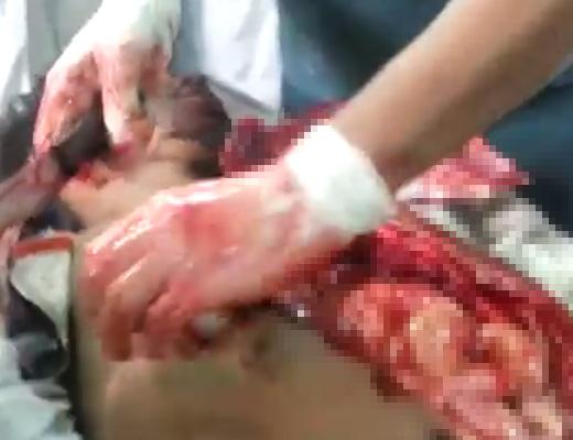 【グロ動画】たった3分で行われるスピード解剖を実際にやってみたら 内臓バラし過ぎて収集不可避へ・・・ ※閲覧注意