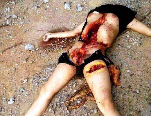 【グロ画像】美女の死体と言えばレイプ以外にも臓器売買で殺された子もいるらしい。腹の傷がエグい 閲覧注意
