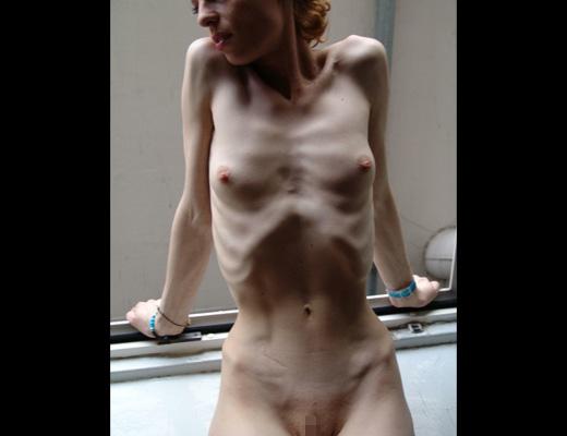 【エログロ】拒食症女性ヌード全然エロくないんだが・・・これ生きてるん??? 画像
