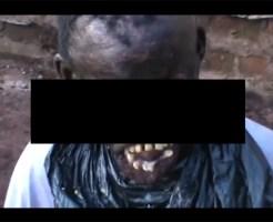 【顔面崩壊】継母に熱湯をかけられ治療せず放置された少年の顔が・・・ ※超閲覧注