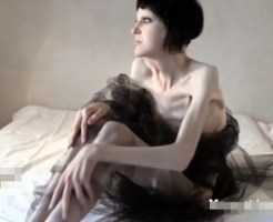 【美女グロ】拒食症になった美女モデルのヌードが全く抜けないんだが・・・