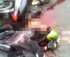 【グロ動画】バイク事故で中身が全部飛び出したんだけど質問ある?
