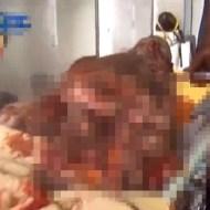 【グロ動画】絶対に助からないだろ・・・空爆被害者の緊急搬送映像・・・