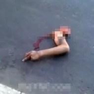 【グロ動画】事故で千切れ飛んだ腕の中指が立ってる奇跡・・・
