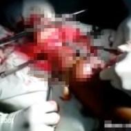 【グロ注意】足切断手術・・・マジでのこぎり使うんだな・・・ 動画あり