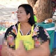 【グロ画像】タイのおばちゃんの手がワンピースみたいになってる!