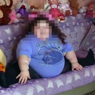 【閲覧注意】4歳女児、身長120cm、体重81kg