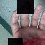 【閲覧注意】酔っ払ってミキサーに手を入れた男がアップした写真・・・