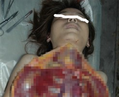 【閲覧注意】女性の体の上から下までメスを入れてパックリ開くとこんな感じらしい。