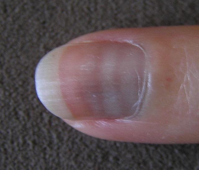Você sabe o que são aquelas manchinhas brancas que aparecem nas unhas? Você sabe o que são aquelas manchinhas brancas que aparecem nas unhas? 22185708816315