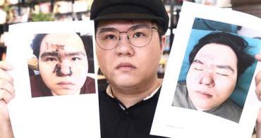 我在淨妍醫美診所做了玻尿酸隆鼻手術,從此我的右眼失明,臉部也毀容了。