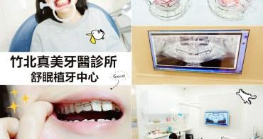 新竹竹北整牙| 真美牙醫診所 舒眠植牙中心 牙套初體驗 快速矯正 兔兔暴牙
