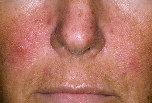Can The Facial Cold Sore Virus (herpes Simplex) Cause Eczema Or Psoriasis? 3