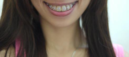 Yaya牙套日記 牙套姊妹們~請每天說:「我是牙套妹,我很正!」