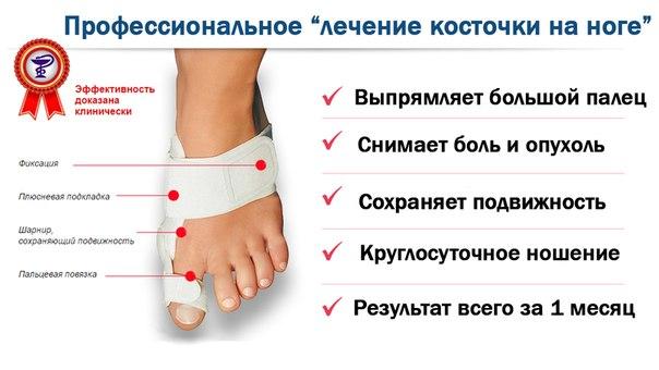 Лечение косточки большого пальца ноги в домашних условиях