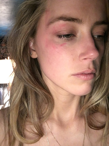 New Photos Show Amber Heard's Injuries Allegedly Caused by Johnny Depp in Another Domestic Violence Incident| Breakups, Crime & Courts, Divorced, Amber Heard, Johnny Depp
